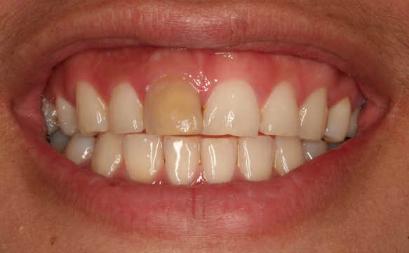 Blek missfargade tander