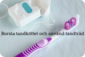 Tandtrad
